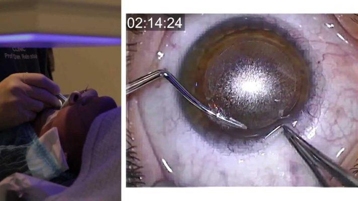 London Vision Clinic | ReLEx SMILE | Live laser eye surgery | Professor Dan Reinstein